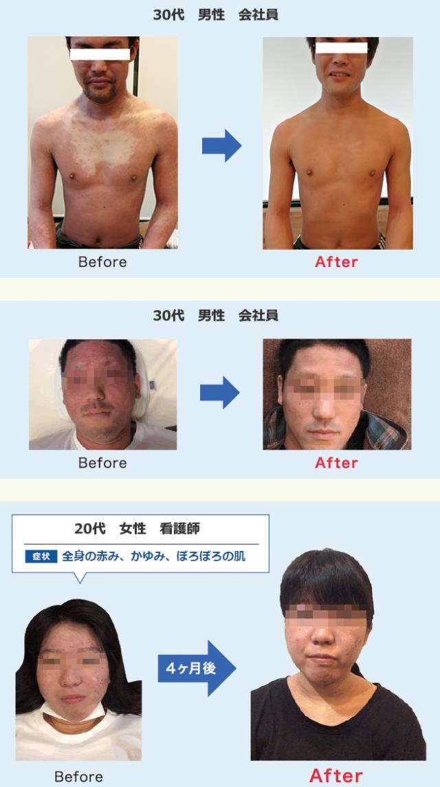 治療前後の写真
